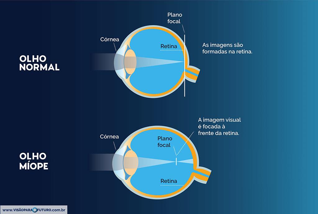 bedb0050b8e50 A miopia é um dos mais frequentes erros de refração e afeta a visão a  distância. Esses erros são caracterizados por defeitos na córnea